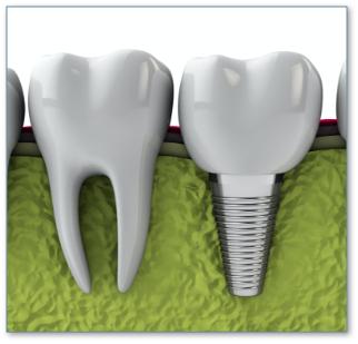 How-Dental-Implants-Works