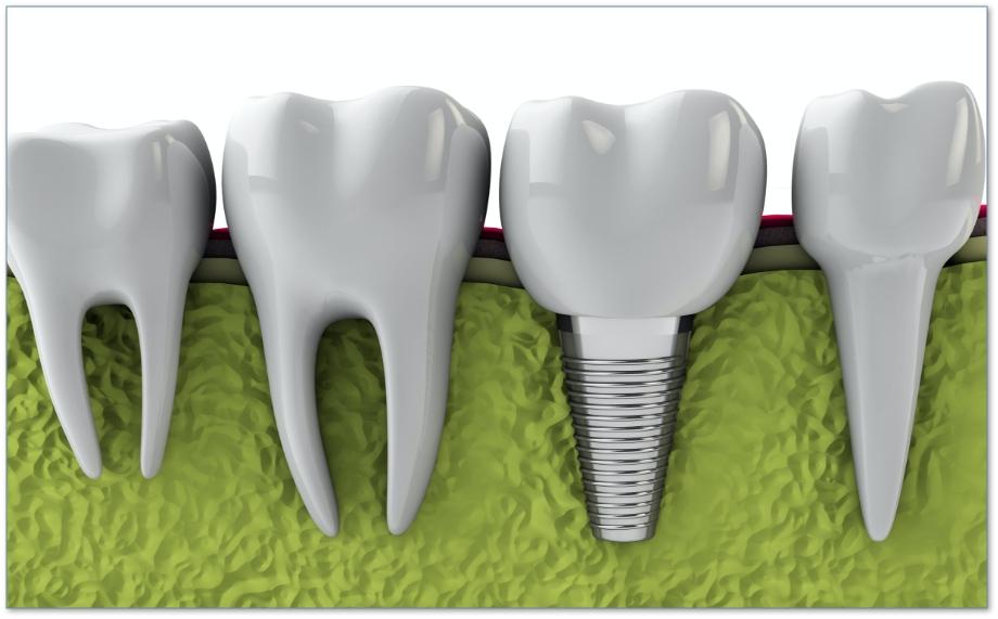 how-dental-implants-work