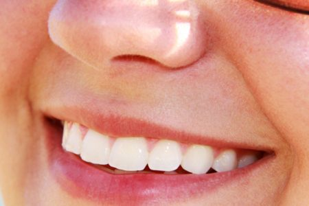 Danger-of-DIY-Teeth-Whitening