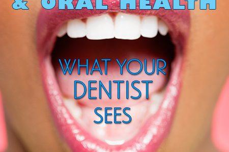 Dental-Diabetes