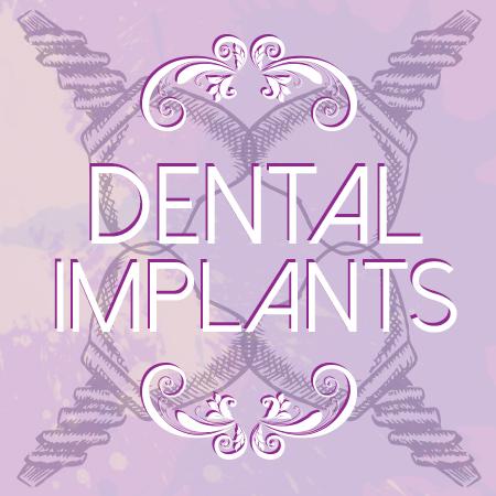 Dental-Implants-facts
