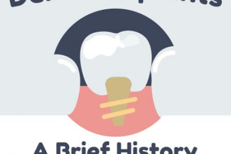 History-of-Implants-1