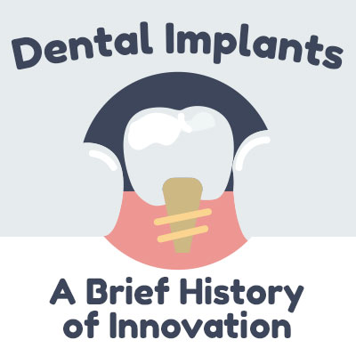 History-of-Implants