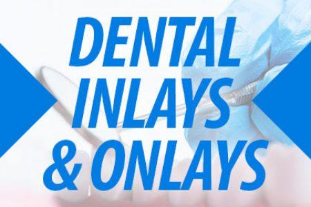 Inlays-Onlays