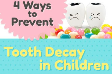 Prevent-Tooth-Decay-in-Kids